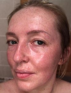 After photo showing makeup artist Gemma Rimmington once she removed the organic face buff/clay mask made by Leafology. Photo shows glowing and hydrated skin.