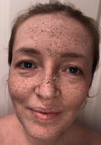 Before photo of makeup artist Gemma Rimmington with the organic face buff/clay mask on her face made my Leafology